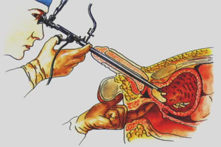rak prostate simptomi i lecenje